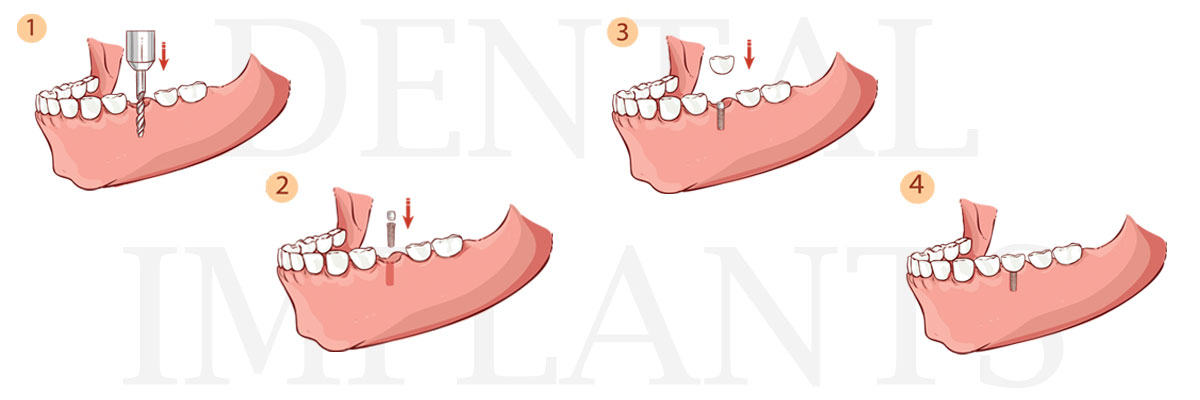 Los Angeles The Dental Implant Procedure